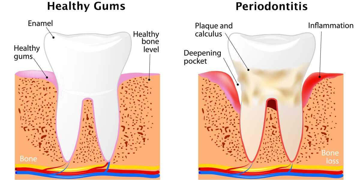 Image Comparing Health Gums and Periodontitis