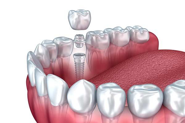 Single Dental Implant