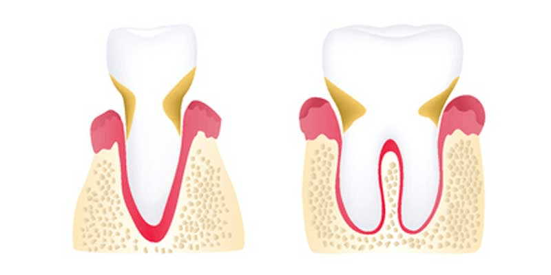 Moderate stage periodontitis