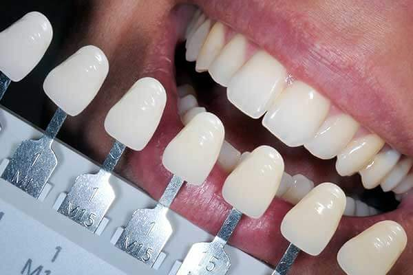 Composite Fillings Shade Guide